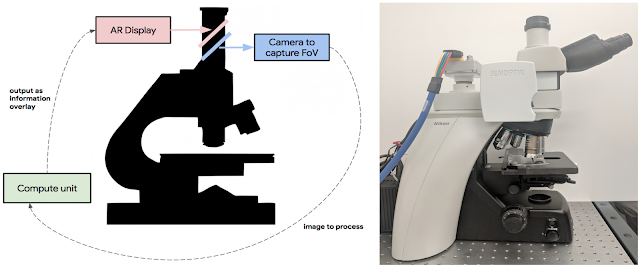 An Augmented Reality Microscope for Cancer Detection